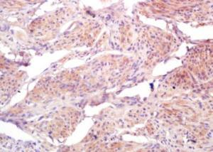 Immunohistochemical analysis of formalin-fixed paraffin embedded human cervical carcinoma tissue using BRI3BP antibody (dilution at 1:200)