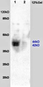 Western blot analysis of rat brain lysates(Lane1),rat heart lysates(Lane2) using ARC antibody