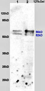 Western blot analysis of rat liver lysates (30ug) using ALDH2 antibody at 1:200 dilution and incubated at 4 degrees for overnight
