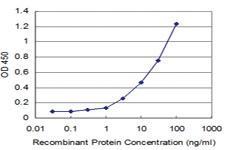 Anti-TTF2 Mouse Monoclonal Antibody