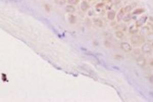 Anti-KRT17 Rabbit Polyclonal Antibody